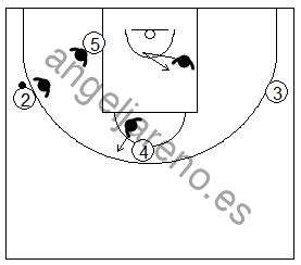 Gráfico de baloncesto que recoge una defensa del poste bajo por delante de cara al balón en la defensa del hombre sin balón