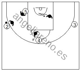 Gráfico de baloncesto que recoge una defensa del poste bajo por delante de espaldas al balón en la defensa del hombre sin balón