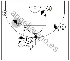 Gráfico de baloncesto que recoge la defensa de equipo del bloqueo directo utilizando la ayuda y la recuperación