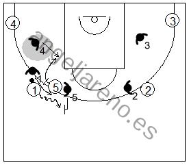 Gráfico de baloncesto que recoge la defensa de equipo del bloqueo directo lateral utilizando la ayuda y recuperación