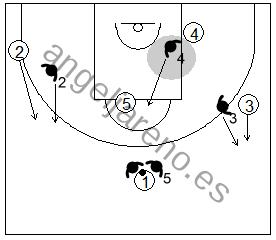 Gráfico de baloncesto que recoge la defensa de equipo del bloqueo directo mano a mano utilizando el 2x1