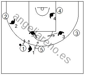 Gráfico de baloncesto que recoge la defensa de equipo del bloqueo directo utilizando la negación del bloqueo