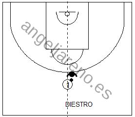 Gráfico de baloncesto que recoge la defensa del hombre con balón cuando el ataque juega en el centro