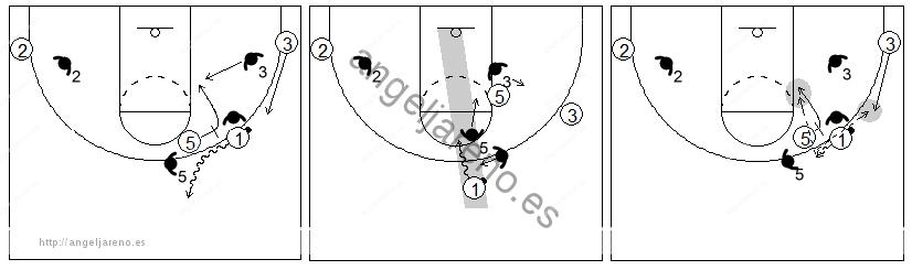 Gráfico de baloncesto que recoge el juego de equipo en el bloqueo directo contra un defensor que ayuda verticalmente
