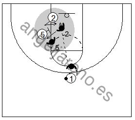 Gráfico de baloncesto que recoge un bloqueo indirecto donde el defensor se anticipa al bloqueo