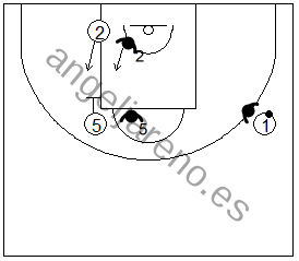 Gráfico de baloncesto que recoge ejercicios de defensa del bloqueo indirecto 3x3 vertical de un interior bloqueando a un exterior