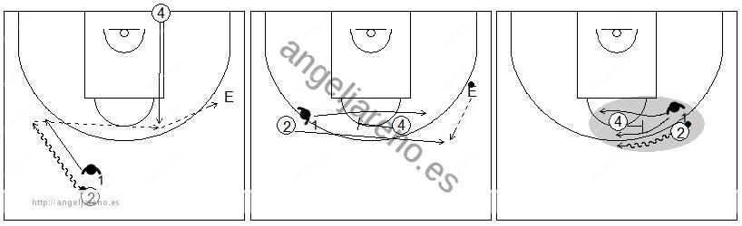 Gráficos de baloncesto que recogen ejercicios de defensa del bloqueo directo con un defensor defendiendo al atacante con balón en un bloqueo directo central tras bloqueo indirecto