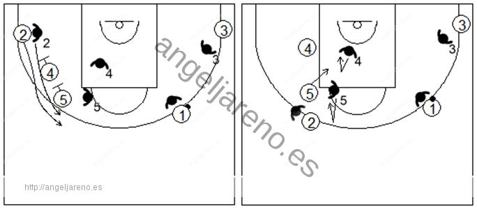 Gráfico de baloncesto que recoge la defensa individual avanzada en los bloqueos indirectos verticales seguidos, de dos hombres grandes a un pequeño