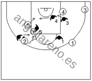 Gráfico de baloncesto que recoge la defensa individual avanzada en los bloqueos indirectos verticales cortando el bloqueo persiguiendo y contra el curl corto