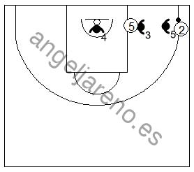 Gráfico de baloncesto que recoge las áreas de responsabilidad de los defensores del fondo en la zona 3-2 cuando el balón va a la esquina