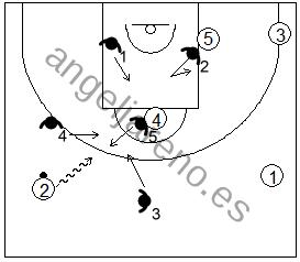 Gráfico de baloncesto que recoge la defensa de la penetración frontal en una zona 1-3-1 press