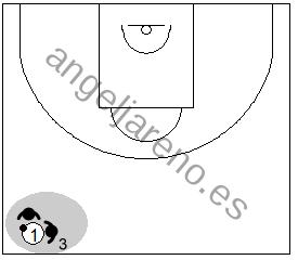 Gráfico de baloncesto que recoge al defensor de punta en una zona 1-3-1 press haciendo un 2x1 nada más pasar el balón el medio campo