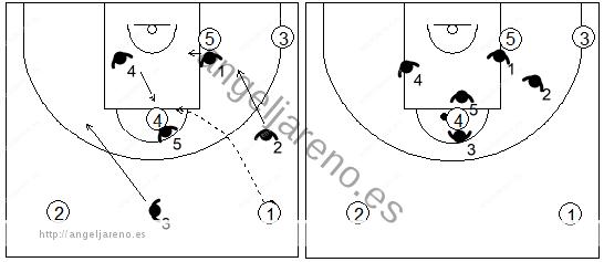 Gráfico de baloncesto que recoge el movimiento defensivo de la zona 1-3-1 press cuando el balón es pasado al poste alto por encima de su defensor