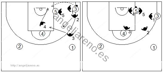 Gráfico de baloncesto que recoge el movimiento defensivo de la zona 1-3-1 press cuando el balón es pasado al poste bajo por encima de su defensor