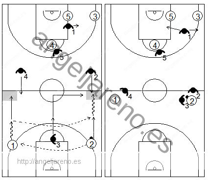 Gráfico de baloncesto que recoge una opción sorpresa de la zona 1-3-1 press realizando un trap en campo de ataque