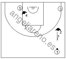 Gráfico de baloncesto que recoge las responsabilidades de los defensores de los lados en una zona 1-3-1 press si el balón está en el frontal