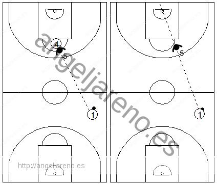 Gráfico de baloncesto que recoge las responsabilidades del defensor central en una zona 1-3-1 press antes de que el balón cruce el medio campo