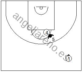 Gráfico de baloncesto que recoge las responsabilidades del defensor central en una zona 1-3-1 press cuando el balón está por encima de la línea de tiro libre