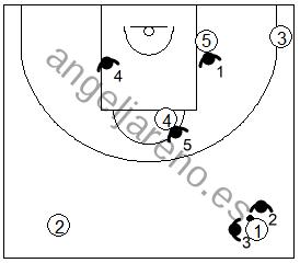 Gráfico de baloncesto que recoge un trap realizado en una zona 1-3-1 press cuando el balón cruza el medio campo
