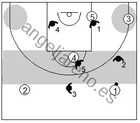 Gráfico de baloncesto que recoge una variante en medio campo de la zona 1-3-1 press