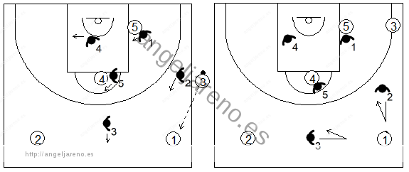 Gráfico de baloncesto que recoge una zona 1-3-1 press en un saque de banda con pase al frontal