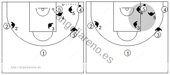 Gráfico de baloncesto que recoge una zona triángulo y 2 cuando el balón llega al poste bajo en una situación normal