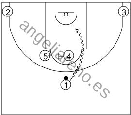 Gráfico de baloncesto que recoge los sistemas 14 a 18 años con el bloqueador bloqueando al otro grande